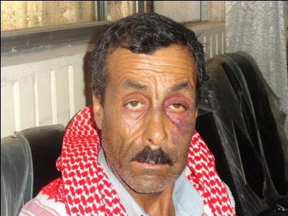 هذه الصورة هي لرجل مدني في منبج                      تلقى ضرباً مبرحاً من إحدى الكتائب