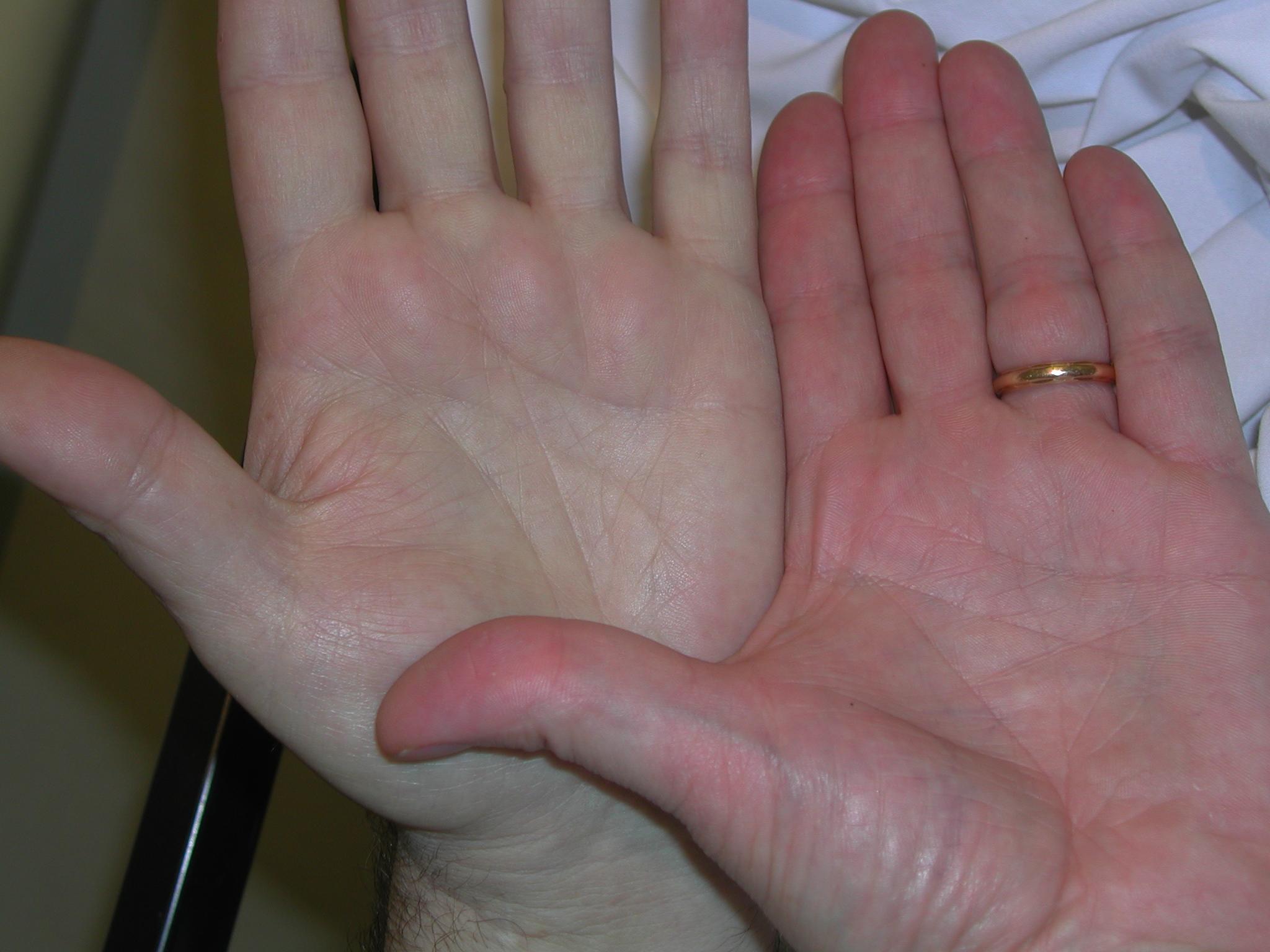 rankos sergant anemija.lt