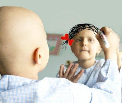 هل أن أعداد حالات السرطان في ارتفاع أو في انخفاض على الصعيد العالمي؟