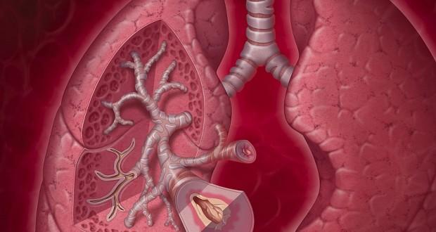 ما هو مرض الرئة الانسدادي المزمن؟
